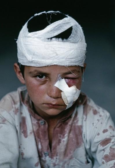 Ranny okaleczony przez minę na północ od Kabulu, 1992 r. Fot. Steve McCurry (za picasaweb)