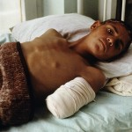 Szpital w Kabulu, 1992 r. Fot. Steve McCurry (za picasaweb)